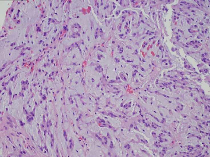 chordoid meningioma