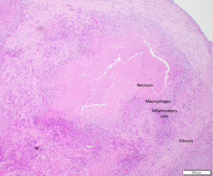 caseating granuloma in TB
