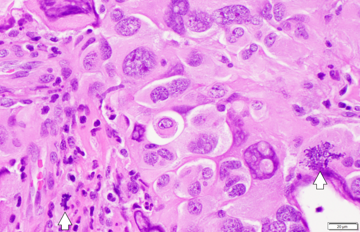 giant cell GBM and granular mitoses