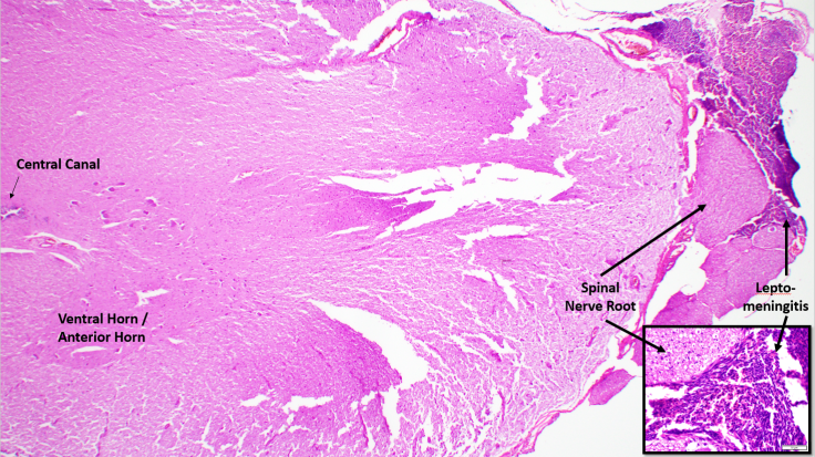 INFECTION_INFLAMMATION OF SPINE AND NERVE ROOTS