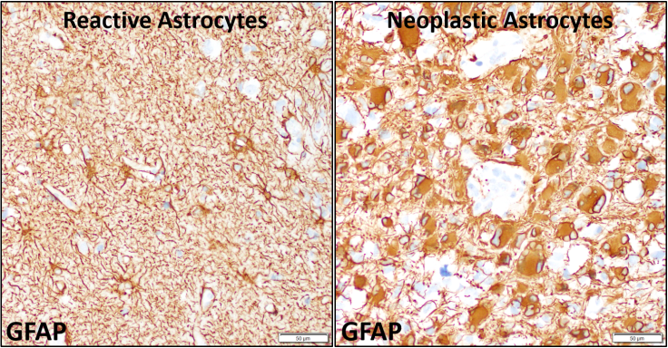 Reactive vs neoplastic astrocytes