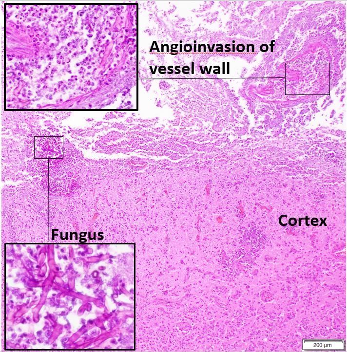 fungal encephalitis with angioinvasion