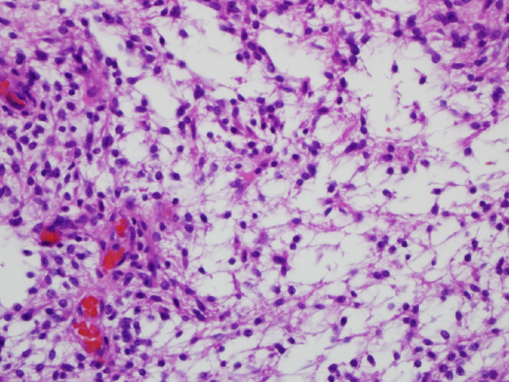 Pilocytic Astrocytoma, S16-919, 40x, with poss EGB
