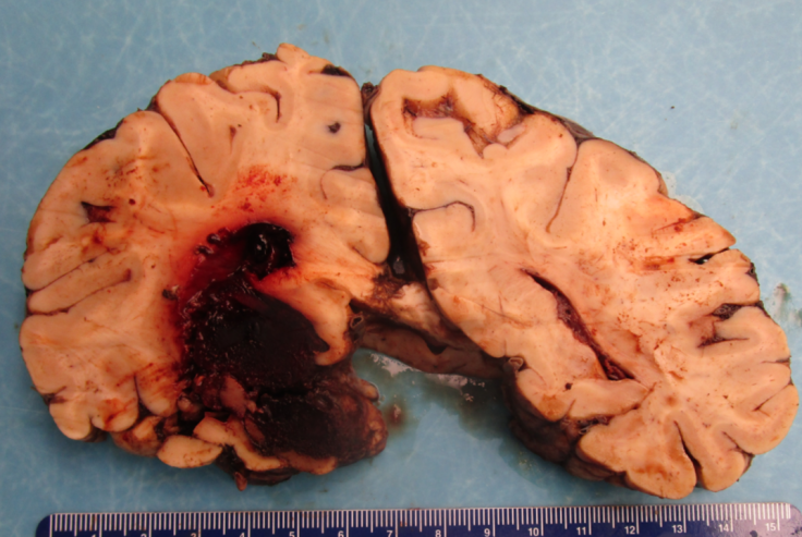 Acute Traumatic Brain Injury, Hemorrhagic infarction