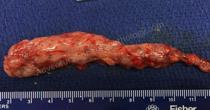 spinal ependymoma